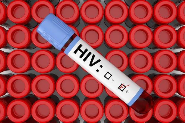 Bloedonderzoek kolf buis met hiv positief resultaat over rijen van reageerbuis buis extreme close-up. 3d-rendering