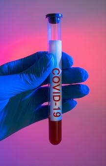 Bloedonderzoek met coronavirus-infectie in een medische reageerbuis in de hand van een arts op een rode achtergrond
