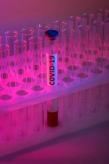 Bloedonderzoek met coronavirus-infectie in een medische reageerbuis op een rode achtergrond