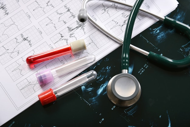 Bloedonderzoek, uitbraak van coronavirus, vaccin en onderzoek naar nieuwe geneesmiddelen voor pandemie covid-19, medische apparatuur voor gezondheidscontrole
