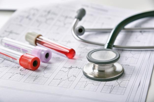 Bloedonderzoekstesten, uitbraak van coronavirusziekte, vaccin en nieuw geneesmiddelenonderzoek voor covid-19 pandemie, bloedresultaat en medische apparatuur voor gezondheidscontrole.