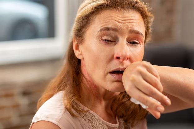 Blondharige zieke vrouw met lopende neus en hoest die lijdt aan allergie