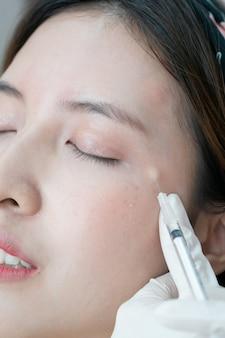 Botox, filler-injectie voor aziatisch vrouwelijk gezicht. plastische esthetische gezichtschirurgie in schoonheidskliniek.