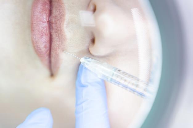 Bovenaanzicht van een vrouw die een vullerinjectie in de bovenlip krijgt in een schoonheidssalon