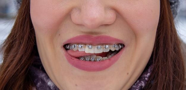 Bretels in de lachende mond van een meisje, macrofotografie van tanden, close-up van rode lippen. tong tussen de lippen. een meisje loopt door de straat