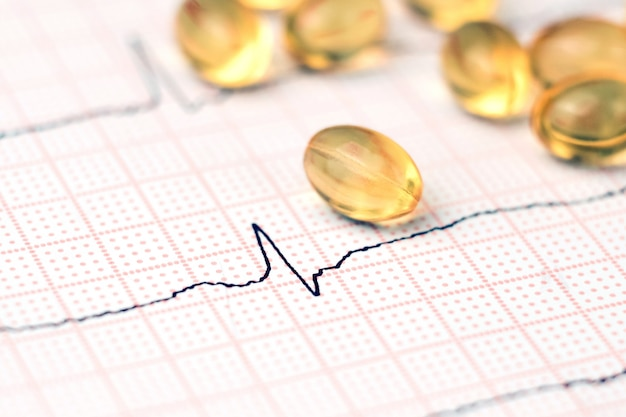Cardiogram en pillen