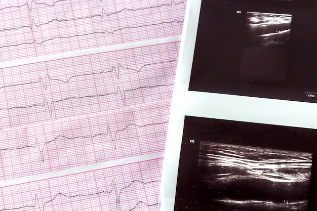 Cardiogram met echografie of echografie van hersenvaten close-up.