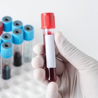 Chirurg houdt een bloedtestbuisje vast