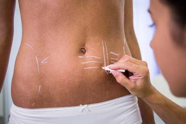 Chirurg tekent lijnen op de buik van de vrouw voor liposuctie en verwijdering van cellulitis