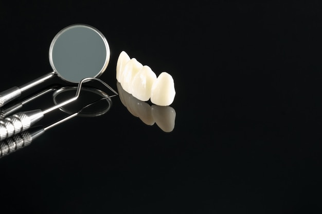 Close / prosthodontics of prothetische / tand kroon en brug implantaat tandheelkunde apparatuur en model express fix restauratie.