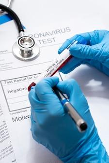 Close-up arts die gevaarlijke virussteekproeven houdt