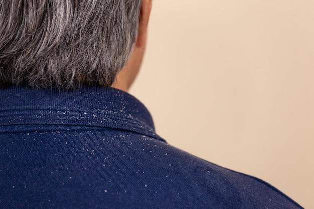 Close-up beeld van een man die veel roos van zijn haar op zijn shirt en schouders heeft