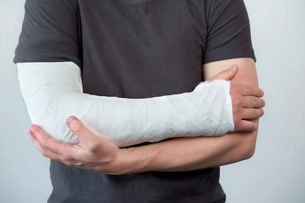 Close-up beeld van iemands arm met gipsverband op een witte muur
