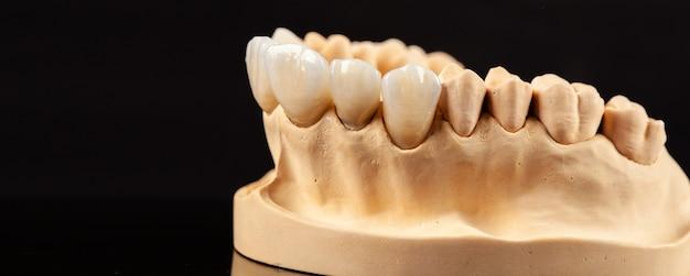 Close-up beeld van tandheelkundige lay-out van bovenste fineren van tandenprothese