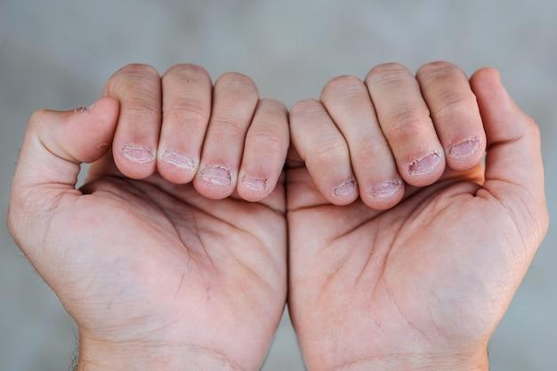 Close-up detail van twee handen met gebeten en lelijke nagels