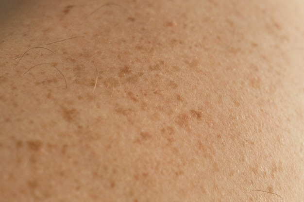 Close-up details van de blote huid op de rug van een man met verspreide moedervlekken en sproeten. goedaardige moedervlekken controleren