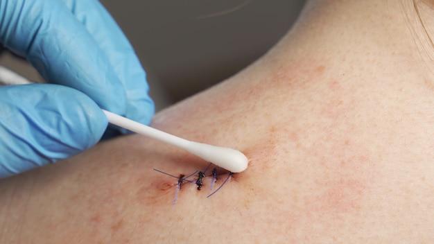Close-up, een arts in medische steriele handschoenen wattenstaafje behandeld met antiseptische bloedende wond op de schouder van een tienermeisje.