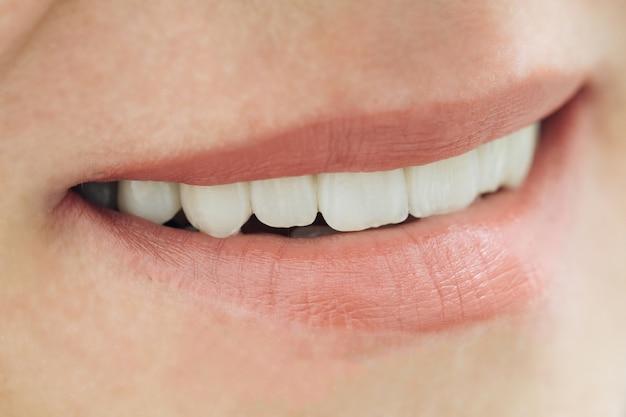 Close-up glimlach foto met zirkonium kunsttanden. zirkonia brug met porselein.