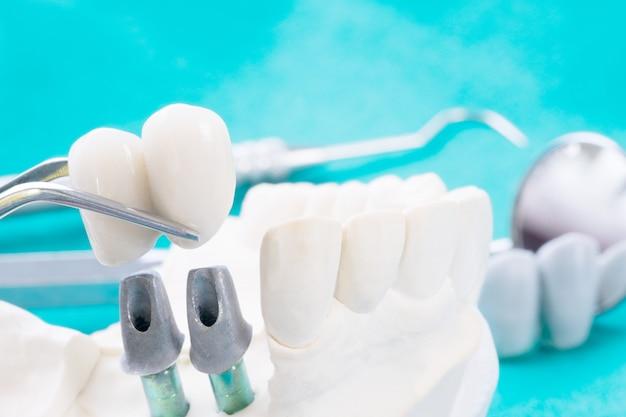 Close-up implan-model tandsteunbrug implan en kroon.