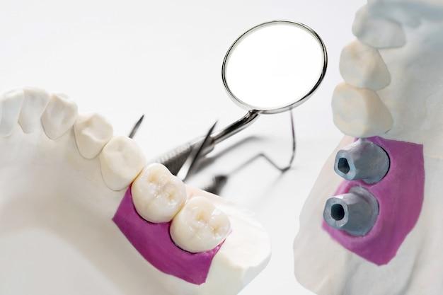 Close-up / implantaatprothetiek of prothese / tandkroon en brug implantaat tandheelkundige apparatuur en model express fix restauratie.
