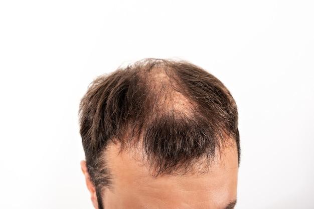 Close-up kalende hoofd van een jonge man op een witte geïsoleerde achtergrond. Premium Foto