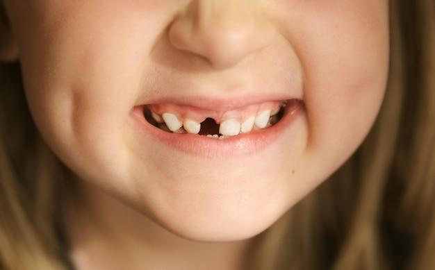 Close-up mond kind heeft melktanden verloren vervanging van permanent wisselende tanden tandeloze glimlach