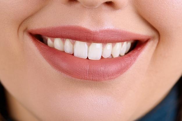 Close-up mooie jonge vrouwenglimlach. tandheelkundige gezondheid. tanden bleken. restauratie concept