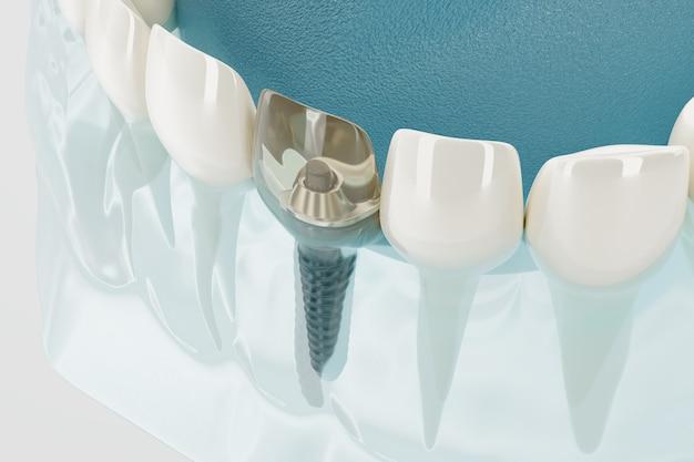 Close-up onderdeel van transparante tandheelkundige implantaten. 3d-weergave.