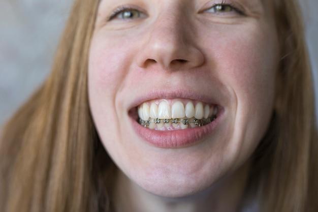 Close-up portret van lachend meisje met metalen beugels op de onderkaak tanduitlijning scheve tanden