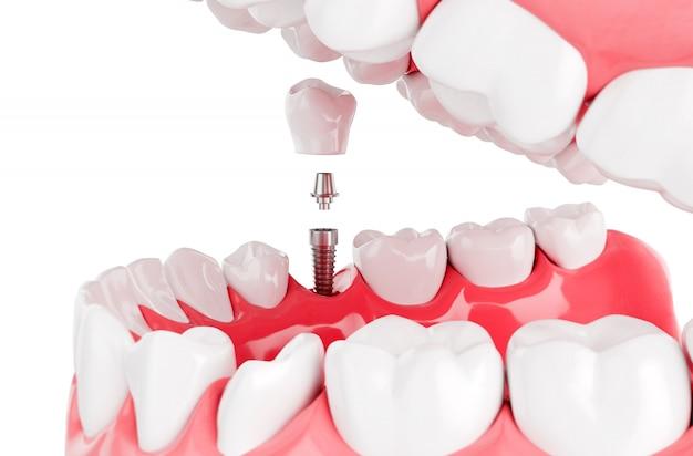 Close-up proces implanteert tandengezondheidszorg. selectieve aandacht. 3d render.