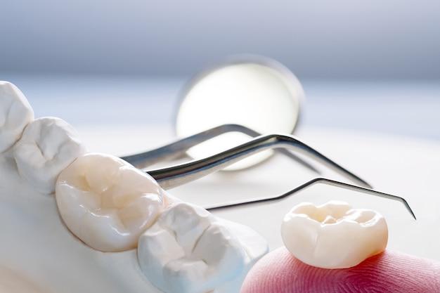 Close-up / prothetische behandeling of prothetische / enkele tanden kroon- en bruguitrusting model express fix restauratie.