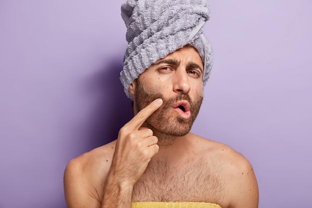 Close-up shot van ernstige blanke man wijst naar de wang, toont een problematische huid, heeft stoppels, past siliconen patches toe onder de ogen, staat op blote schouders, heeft een handdoek op het hoofd gewikkeld. verwennerij concept