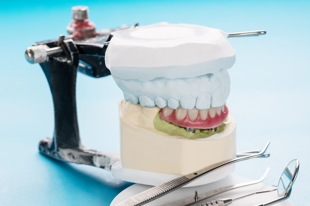 Close-up / tandheelkundige implantaten ondersteund overkappingsprothese op blauwe achtergrond.