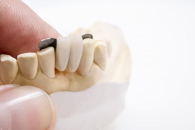 Close-up tandheelkundige maryland brug kroon en brug apparatuur en model express fix restauratie.