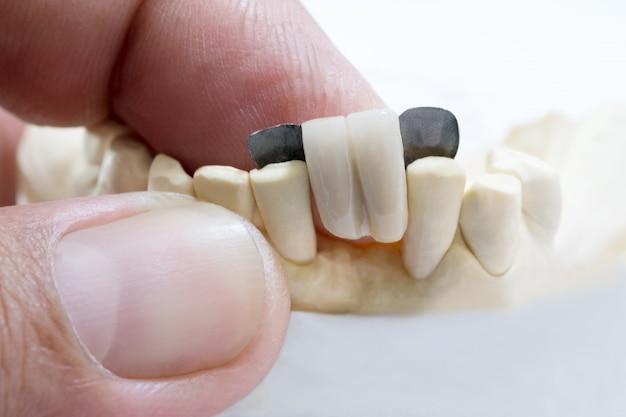 Close-up / tandheelkundige maryland-brug / kroon- en bruguitrusting en model express restauratie.