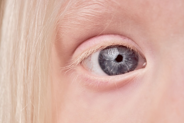 Close-up van albinokind met ongebruikelijke ogen, wenkbrauwen en wimperskleur