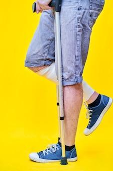 Close-up van de benen van een man in profiel in korte broek en op krukken, met een verbonden been.