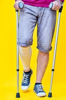 Close-up van de benen van een man van voren met korte broek en krukken, met een verbonden been.
