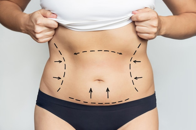 Close-up van de buik van een vrouw met overtollig vet met markering op haar lichaam liposuctie plastische chirurgie