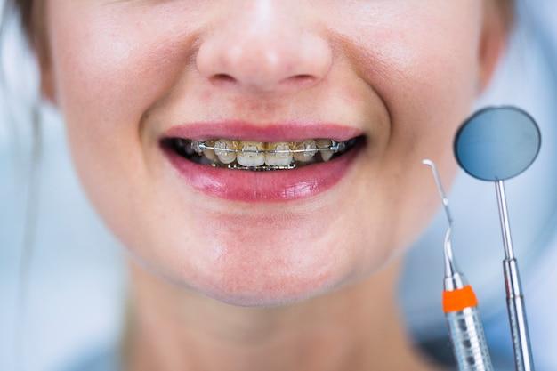 Close-up van de tanden van een vrouw met steunen