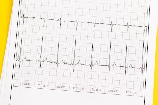 Close up van ecg, elektrocardiogram. het werk van een gezond hart op papier.