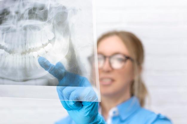 Close-up van een blonde vrouwelijke arts kijkt naar een panoramisch röntgenbeeld van de kaak van een patiënt in de tandheelkundige kliniek en wijst met een vinger naar een zere tand. tandheelkunde, chirurgie, geneeskunde technologie concept.