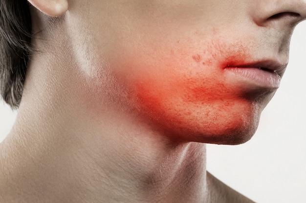 Close-up van een gevoelige huidirritatie na een scheerroutine
