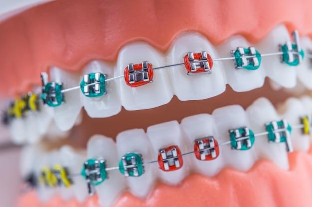 Close-up van een orthodontisch model kaken en tanden met beugels.