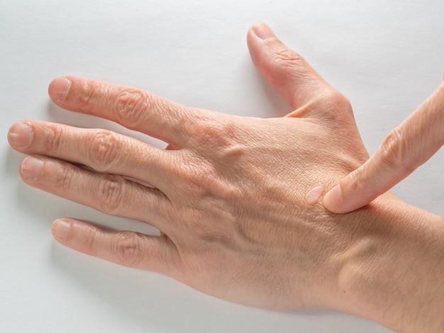 Close up van een oude wrat op een hand