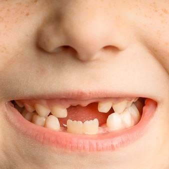 Close-up van het gezicht van een kind met verloren voortanden