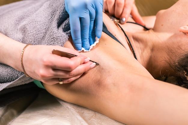 Close-up van het verwijderen van okselhaar met een pincet. vrouwelijke ontharing. cosmetologie en schoonheidssalon
