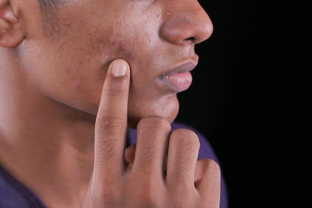 Close up van jonge man gezicht met huidprobleem.