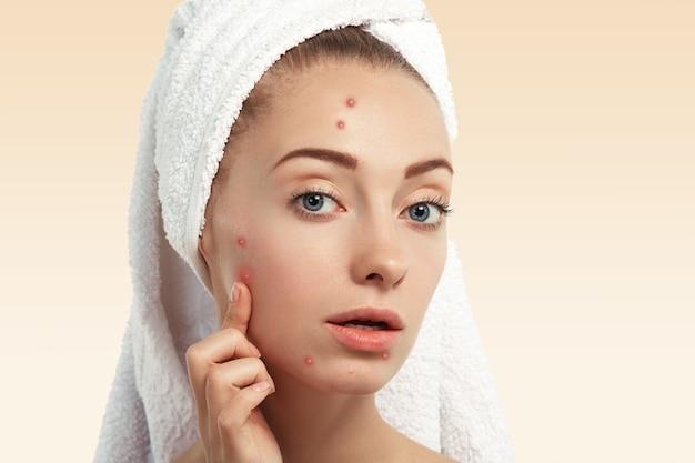 Close-up van jonge vrouw met handdoek op hoofd en puistjes op gezicht