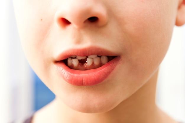 Close-up van jongen die met ontbrekende voort melktand glimlacht